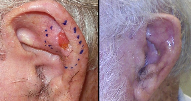 Squamous Cancer of the Left Ear, before and after radiation