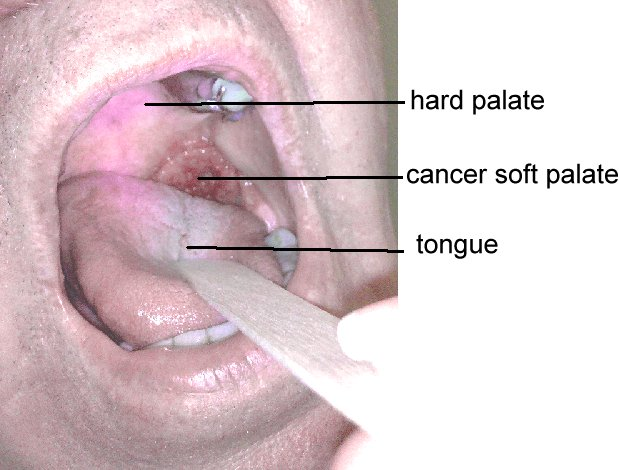 Pictures of Hard Palate Cancer http://www.aboutcancer.com/throat5.htm