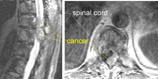 Spinal Cord Syndrome