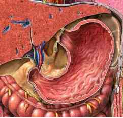 abdominal pain in waves