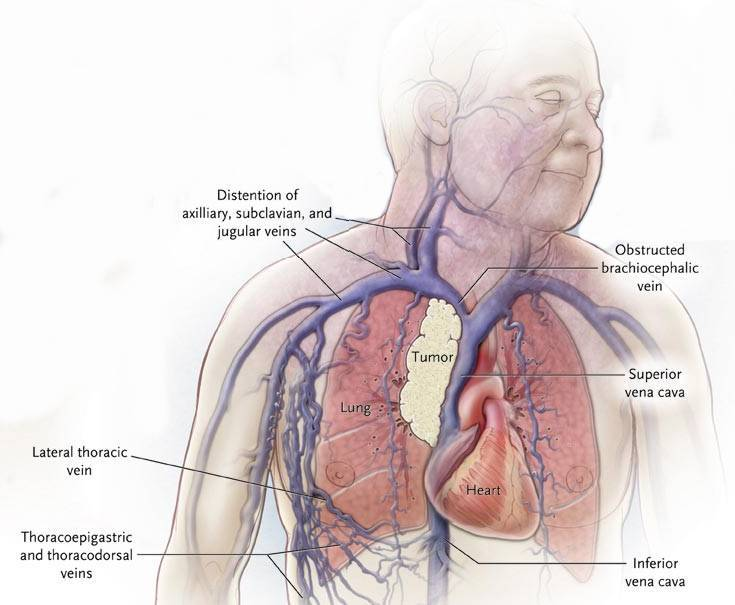 superior vena cava syndrome, Human Body