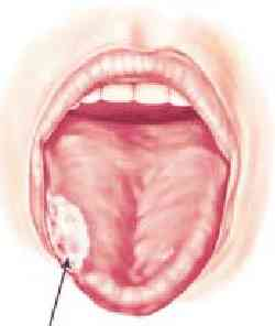 tongue_nejm.jpg (5160 bytes)
