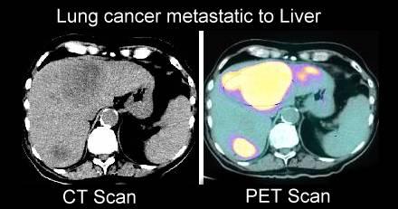 Pet Scans In Cancer Cases