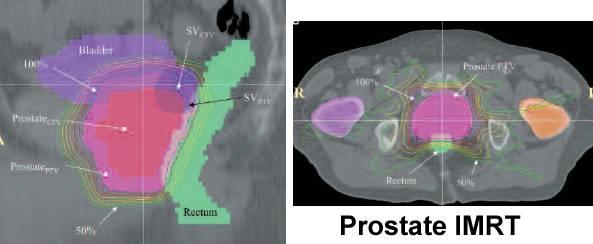 Imrt best option for prostate cancer